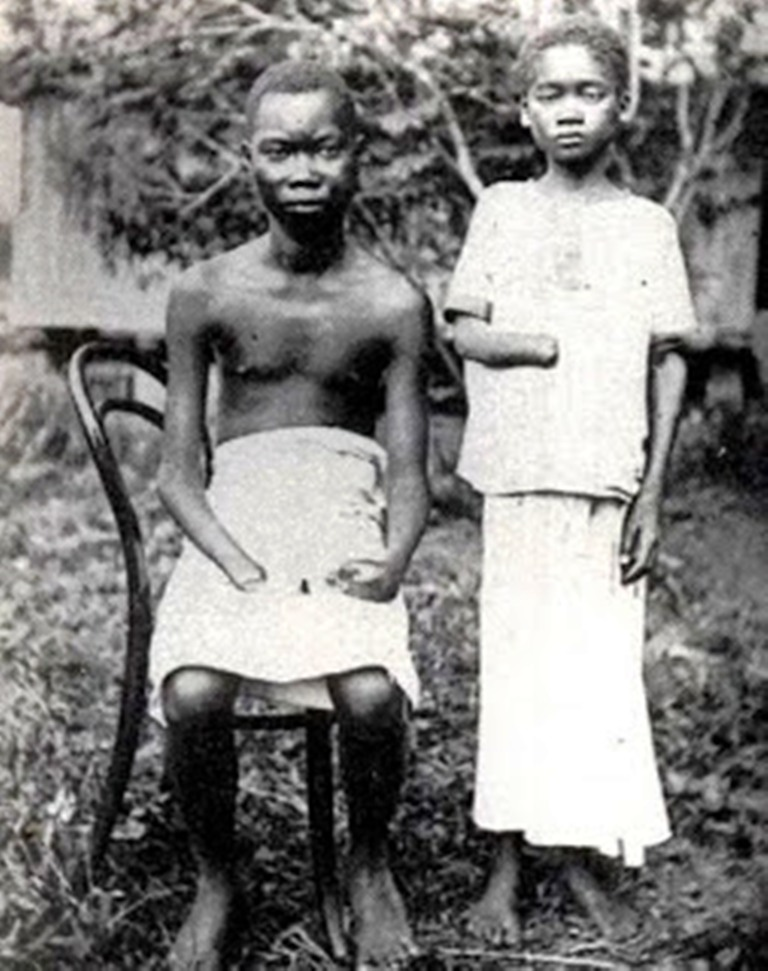 Under the reign of terror instituted by King Leopold II in Congo, as many as 10 million Africans lost their lives to one man's greed, exploitation and brutality that Africa